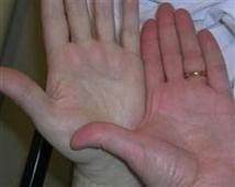 Залізодефіцитна і В-12 дефіцитна анемії. Чим вони відрізняються між собою.